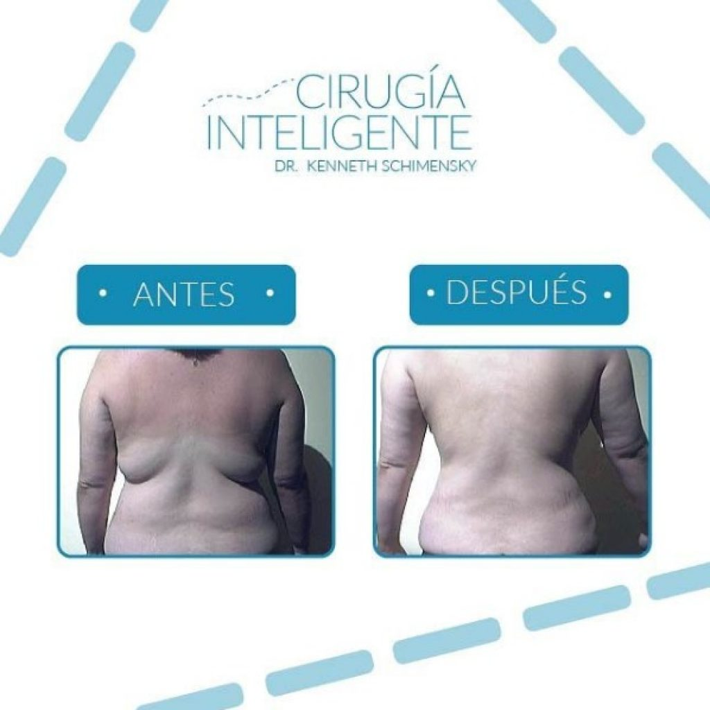 Liposucc 237 On Cirug 237 A Inteligente